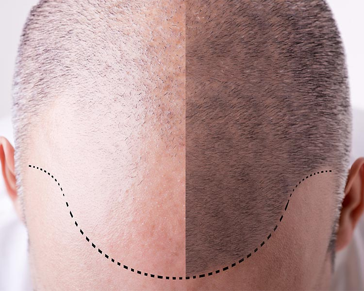 after hair transplant care