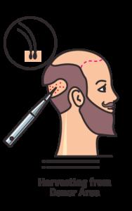 fue-hair-transplant-in-turkey-4